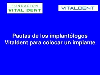 Pautas de los implantologos Vitaldent para colocar un implan