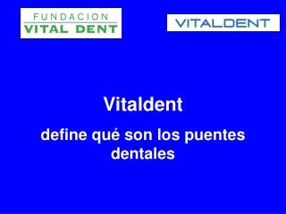 Vitaldent define qué son los puentes dentales