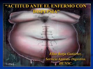 ACTITUD ANTE EL ENFERMO CON DISPEPSIA.