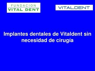 Implantes dentales de Vitaldent sin necesidad de cirugía