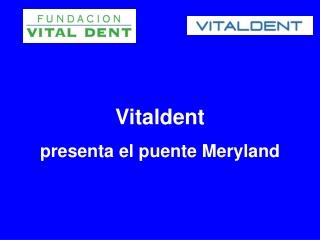 Vitaldent presenta el puente Meryland