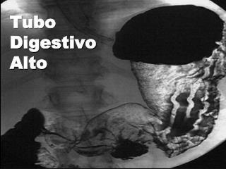Tubo Digestivo Alto