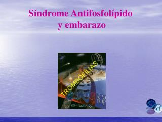 S ndrome Antifosfol pido   y embarazo