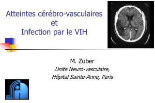 Atteintes c r bro-vasculaires et  Infection par le VIH