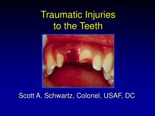 Traumatic Injuries  to the Teeth