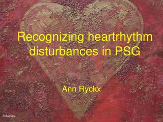 recognizing heartrhythm disturbances in psg