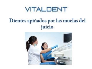 Vital Dent Palencia y el apiñamiento dental