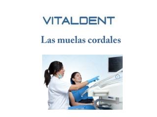 Vital dent Palencia; muelas cordales