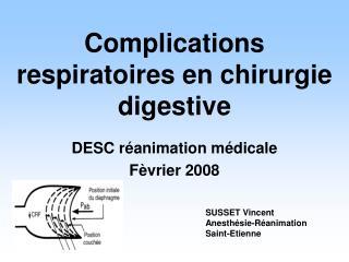 Complications respiratoires en chirurgie digestive