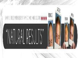 Treating Hair Loss In A Simple, Natural Way