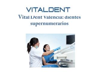 Vital Dent Valencia
