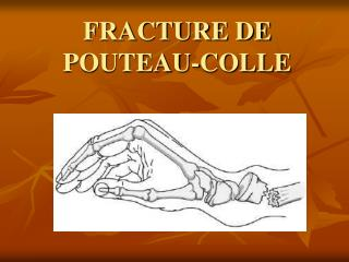 FRACTURE DE POUTEAU-COLLE