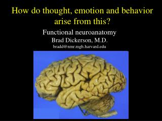 Functional neuroanatomy Brad Dick