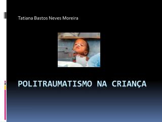 POLITRAUMATISMO NA CRIAN A
