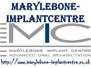 marylebone-implantcentre