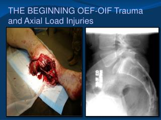 THE BEGINNING OEF-OIF Trauma and Axial Load Injuries