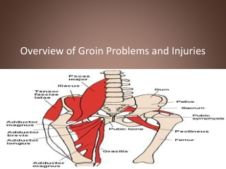 Groin Injuries And Problems