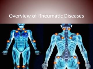 Rheumatology Diseases