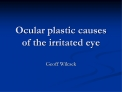 Ocular plastic causes of the irritated eye