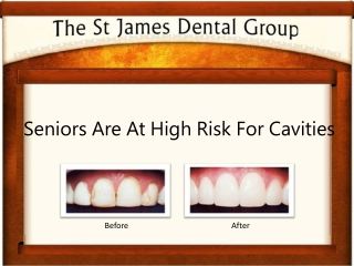 Elderly Are At High Risk For Dental Caries