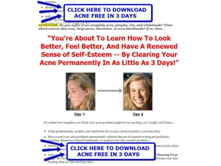 Acne Free In 3 Days   Acne Free In 3 Days Book Download
