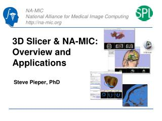 3D Slicer  NA-MIC: Overview and Applications