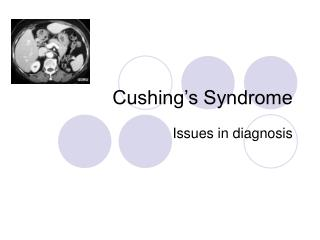 Cushing s Syndrome