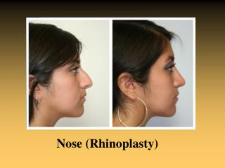 Rhinoplasty houston