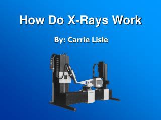 How Do X-Rays Work
