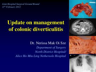 Update on management 