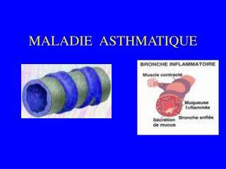 MALADIE ASTHMATIQUE