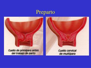 Preparto