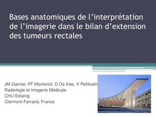 Bases anatomiques de l interpr tation de l imagerie dans le bilan d extension des tumeurs rectales