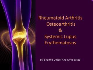 Rheumatoid Arthritis  Osteoarthritis   Systemic Lupus Erythematosus