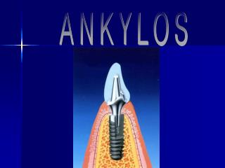 ANKYLOS   Surgical Procedures