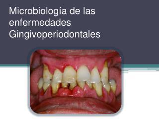 Microbiolog a de las enfermedades Gingivoperiodontales