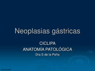 Neoplasias g stricas