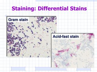 Staining: Differential Stains