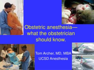 Obstetric anesthesia  what the obstetrician  should know.