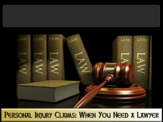 Personal Injury Claims- When You Need a Lawyer