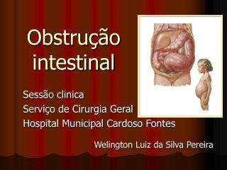 Obstru  o  intestinal