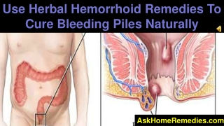 Use Herbal Hemorrhoid Remedies To Cure Bleeding Piles Natura