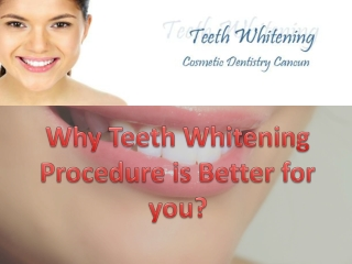 Teeth Whitening Procedure in Cancun