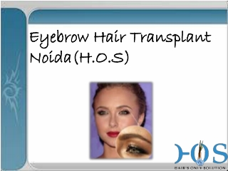 Eyebrow Hair transplantation at H.O.S