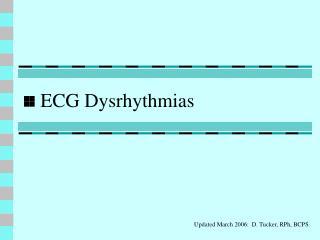 ecg dysrhythmias