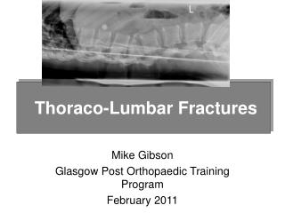 Mike Gibson Glasgow Post Orthopaedic Training Program February 2011