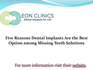 Five Reasons Dental Implants Are the Best Option