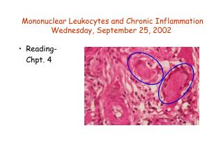 Mononuclear Leukocytes and Chronic Inflammation Wednesday, September 25, 2002