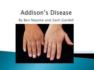 Addison s Disease
