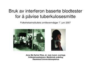 Bruk av interferon baserte blodtester for   p vise tuberkulosesmitte Folkehelseinstituttets smitteverndager 7. juni 2007